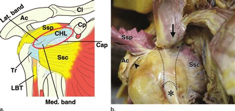 Normal anatomy. Ac = acromion, Ssc = subscapularis tendon ...