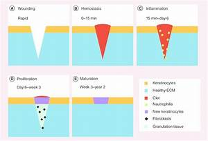 Schematic Representation Of The Different Phases Of Wound