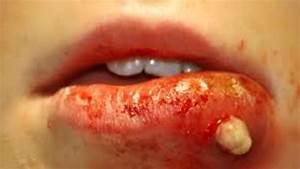 Facial Cyst - Medical Case Study