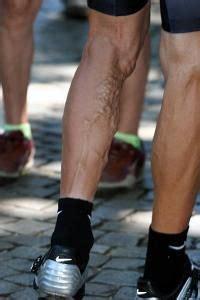 pin op legs