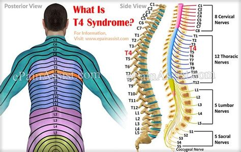 142 Best Back Pain Images On Pinterest  Back Pain. Credit Card Processing For Android Phones. Car Repair Insurance For Older Cars. Account Receivable Turnover M I Corporation. High Speed Internet Scottsdale Az. Four Year Universities Better Carpet Cleaners. Simvastatin Common Side Effects. Everest College In Chesapeake Va. Fetal Alcohol Syndrome Treatments