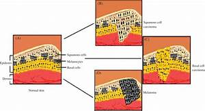 2 Illustration Of The Pathophysiology Of Skin  Cancer And