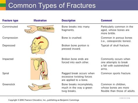 Describe Six Types Of Bone Fractures