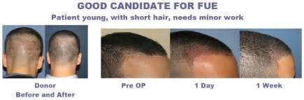 Hair Implants Columbia Sc 29229 How To Choose Affordable Hair Transplant Surgeryhair