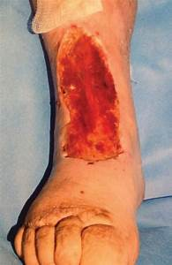Side Effects Of Compression Stockings  A Case Report