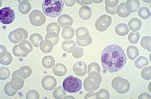 Peripheral Blood Color Images