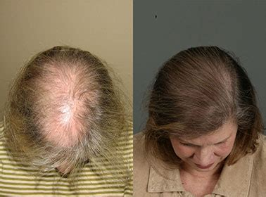 hair transplantation  women