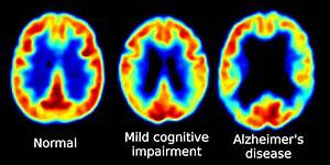 New Alzheimer's Research Pinpoints Disease Trigger