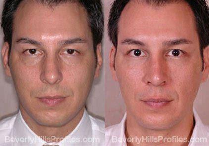 facial fat transfer    beverly hills
