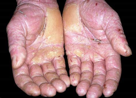 hse work related skin disease image library