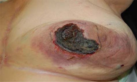Breast Infection The Bmj