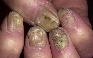 Как вылечить грибок ногтей на ногах в домашних условиях чистотелом