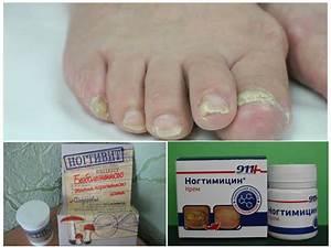Уксусная эссенция от грибка ногтей отзывы