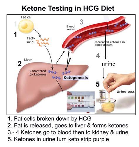 Ketones  Urine Causes, Symptoms, Treatment Ketones Urine