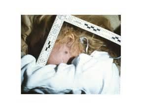 JonBenet Ramsey Dead Body - Bing images