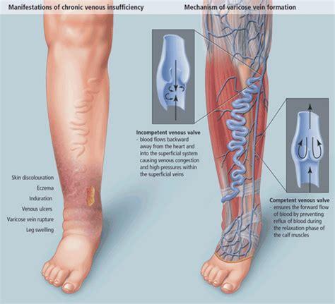 venous compression stockings