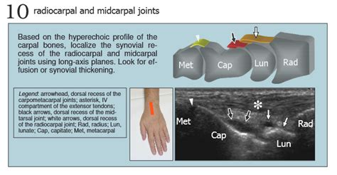 Sonographic Routine for Wrist - MSK Learning ...