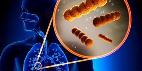 gelber schleim nase bakterien oder viren lungenentz 252 ndung infekti 246 se entz 252 ndung des lungengewebes