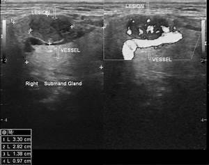Salivary Gland Tumor Ultrasound