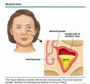 Chronic Rhino-sinusitis- Fact Sheet