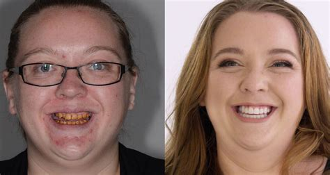 Womans Shocking Teeth Transformation I Didnt Even