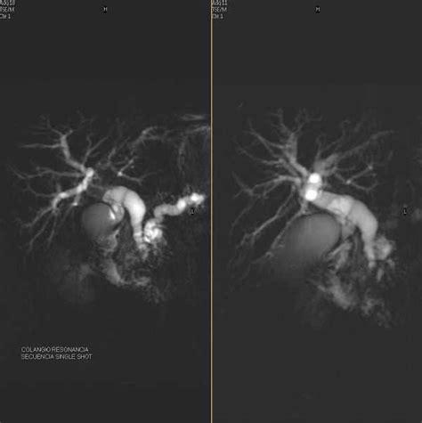 Centro Scan de El Salvador, Resonancia Magnética, Tumor ...