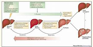 Schematic Representation Of Course Of Chronic Liver