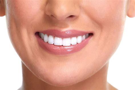Perfect smile thanks to invisalign treatment - Annie Spandex