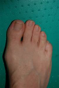 Bunions Feet Treatment Review  Types Of Bunions Feet