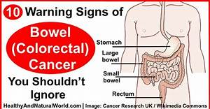 10 Warning Signs of Bowel (Colorectal) Cancer You Shouldn ...