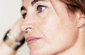 Морщины от носа и уголков губ