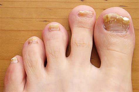Common Toenail Problems Symptoms Causes Treatment