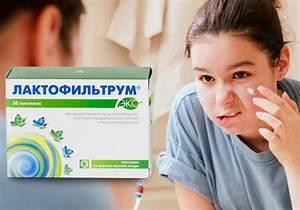 Китай санья лечение псориаз