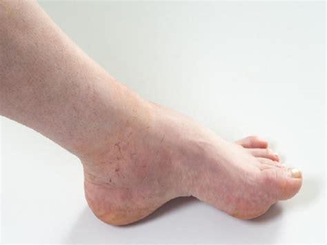 types  eczema  symptoms