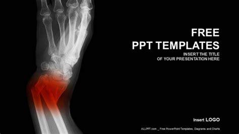 broken forearm medical powerpoint templates