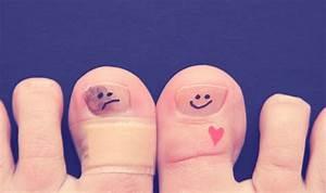 Румикоз при грибке на ногтях ног