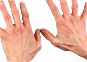 Дипроспан инструкция по применению уколы отзывы при псориазе
