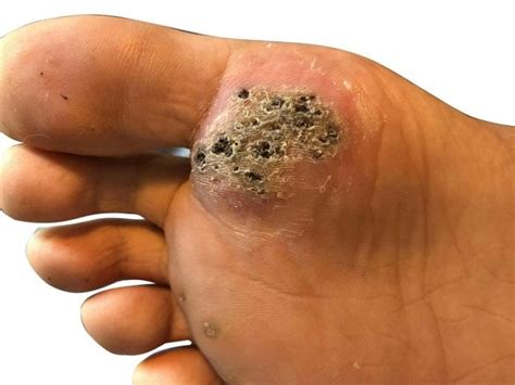 Seed Wart Causes, Symptoms & Treatment Methods For Removal