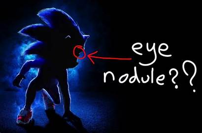 Sonic Hedgehog Action Poster Problems