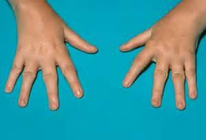 Picture 1 – Juvenile Rheumatoid Arthritis  Juvenile Rheumatoid Arthritis Rheumatoid Arthritis