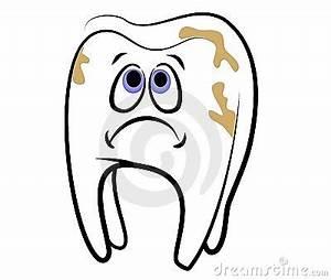 تسوس أسنان الاطفال ، الاسباب والعلاج – مركز جذور الاسنان