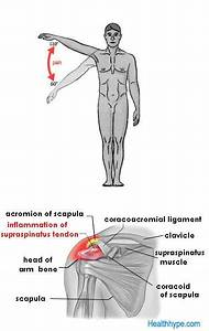 Supraspinatus Tendinitis Causing Painful Arc Syndrome