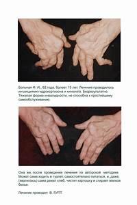 Как избавиться от боли под лопаткой при остеохондрозе