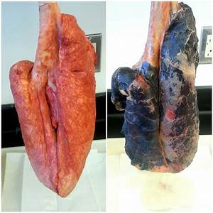 information about healthy lungs vs smokers lungs