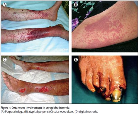 クリオ グロブリン 血 症