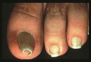 34 Best Images About Nail Disorders  On Pinterest