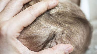 dermite du si鑒e la séborrhée de la tête