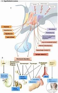 Hypothalamic Lesions