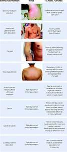Assessment Of Shoulder Pain For Non