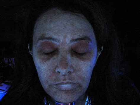 blue light treatment for sun damage doctor vignjevic wood s l test for sun damage detail